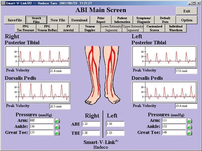 Koven Smart V-Link - Vascular Assessment Software