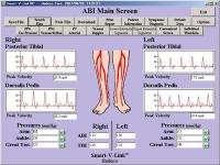 Koven Smart V-Link - Vascular Assessment Software