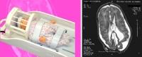 Neonatal/Pediatric MRI Head coil